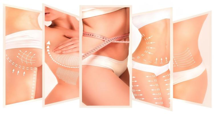 liposuction cost in indore